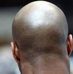 bald-men-attacked-245x246.jpg