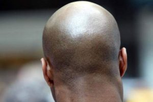 bald-men-attacked-300x200 Bald men with gold in their heads targeted for killing