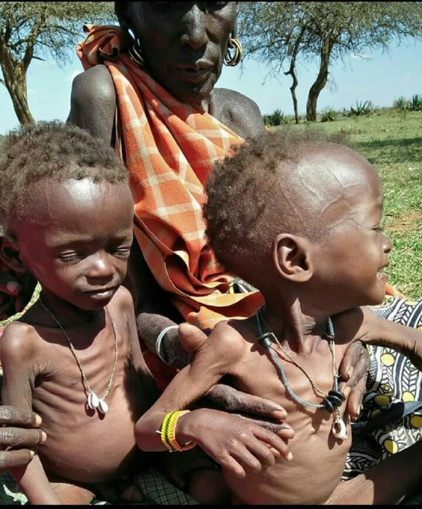 Malnourished-850x1024 Heart-warming rescue of children from the jaws of death